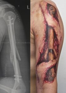 Realistic View of a Man's Broken Arm Tattoo